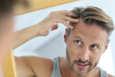 hairloss test
